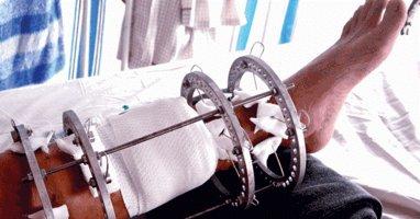 Chịu cực hình kéo xương để có chân dài tại TP.HCM