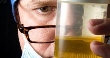 Cách nhận biết bệnh khi quan sát nước tiểu của bản thân