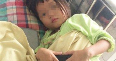 Bé gái nhiễm sán lá gan sau khi ăn thịt bò tái