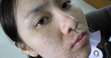 Kem dưỡng trắng da gây hỏng mặt nghiêm trọng