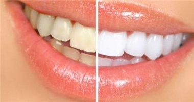 Ăn gì để cải thiện màu răng đã ố vàng?