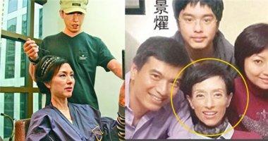 Cựu Hoa hậu Hồng Kông gầy rộc vì ung thư dạ dày