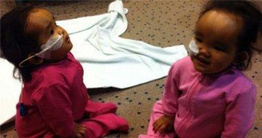 Hàng trăm người cứu sống hai bé song sinh người Việt