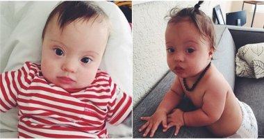 """Ngạc nhiên với em bé """"người mẫu"""" 11 tháng tuổi mắc hội chứng Down"""