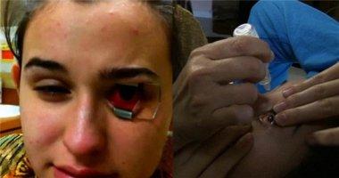 Kinh hãi ổ kí sinh trùng trong mắt cô gái mang kính áp tròng