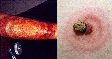 Hoảng hồn bệnh lạ nguy hiểm khôn lường từ bọ ve