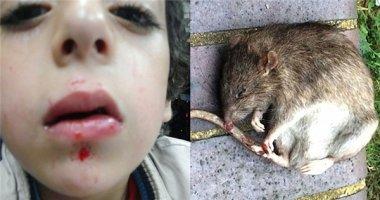 Kinh hoàng khi cậu bé bị chuột điên cắn rách mặt khi đang ngủ