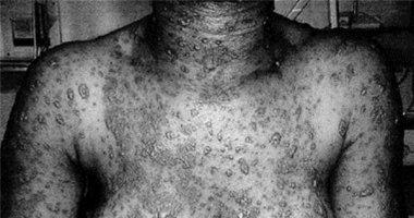 Căn bệnh dị ứng làm lột da nặng hơn bỏng