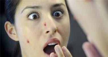 8 cung bậc cảm xúc tột độ khi nặn mụn ai cũng thấu hiểu