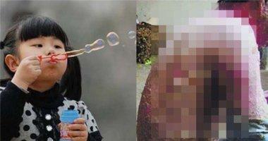 Chơi bong bóng xà phòng có nguy cơ bị bỏng toàn thân