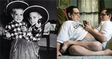 Kì lạ hai anh em sinh đôi dính liền thân già nhất thế giới