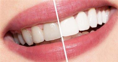 Chà nguyên liệu này trong 5 phút bạn sẽ có ngay hàm răng trắng sáng vạn người mê