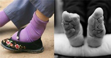 Người phụ nữ cuối cùng bó chân ở Trung Quốc