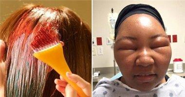 Kinh hoàng người phụ nữ biến dạng mặt, lột da đầu vì nhuộm tóc
