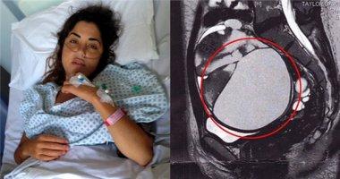 Kinh hoàng phát hiện khối u tử cung to bằng quả dưa hấu