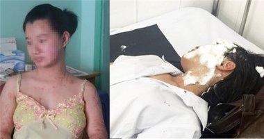 Cuộc sống tăm tối của 2 cô gái bị tạt axít ở Sài Gòn