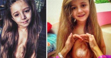 Nghị lực phi thường của cô bé mang quả tim ngoài lồng ngực