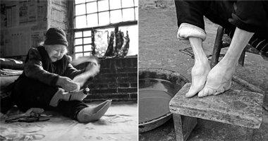 """Lặng người ngắm những hình ảnh cuối cùng của tục bó chân """"gót sen"""""""