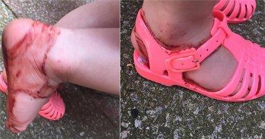 Choáng với thương tổn do đôi giày cao su tưởng chừng vô hại gây ra