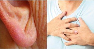 Vết lằn chéo ở dái tai cảnh báo bệnh nguy hiểm