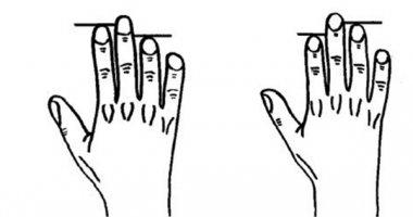 """Chiều dài ngón tay """"hé lộ"""" những sự thật giật mình về bệnh tật"""