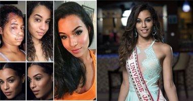 Cô bé bị vết sẹo khổng lồ trên mặt đăng quang Hoa hậu Hoàn vũ