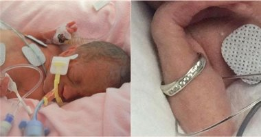Sự sống mong manh của em bé nhỏ đến mức cánh tay xỏ vừa nhẫn cưới