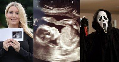 Bà mẹ kinh hoàng phát hiện thai nhi có khuôn mặt ma quái