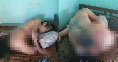 Xót thương bà cụ mù, cụt chân, nằm liệt giường với vết thương lở loét