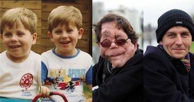 Đau lòng anh em sinh đôi một bị dị dạng một mất trí nhớ do bệnh hiếm