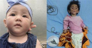 Hình ảnh bụ bẫm dễ thương của bé gái suy dinh dưỡng ở Lào Cai