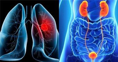 Năm loại ung thư là sát thủ hàng đầu của nam giới