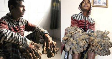Sau một thập kỉ, người cây đã có thể tự do sử dụng tay của mình