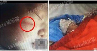 Bác sĩ bất cẩn, em bé mới sinh đã phải mang vết sẹo xấu xí trên mặt