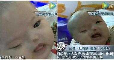 Xót xa em bé hình hài kì dị khiến người mẹ ngất xỉu ngay trên bàn sinh