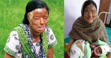 Khoảnh khắc ấm áp của người phụ nữ bị tạt axit lần đầu làm mẹ