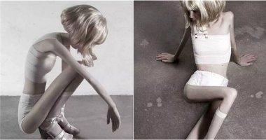 Căn bệnh dị thường đã khiến cô gái này lánh xa thế giới