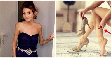 Đớn đau người phụ nữ mất vĩnh viễn một chân vì mang giày cao gót