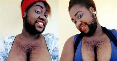 """""""Đã đen còn lắm lông"""", cô gái này vẫn được bạn trai yêu hết mực"""
