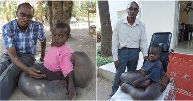 Xót thương cậu bé có đôi chân voi đang phải đối diện nguy cơ tử vong