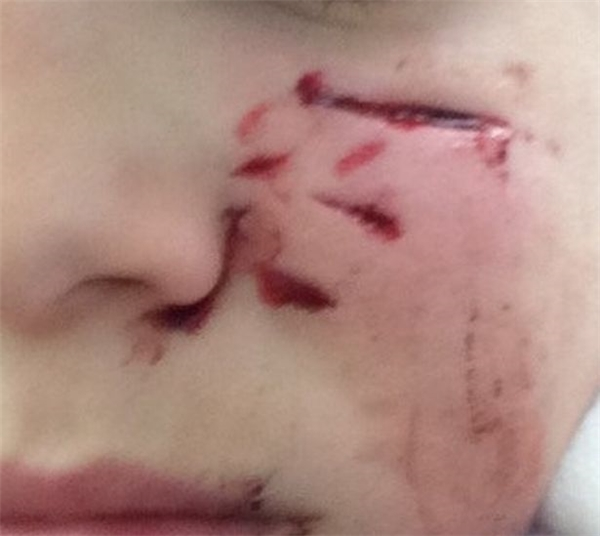 Cận cảnh vết thương trên mặt cậu bé 11 tuổi. (Ảnh Internet)