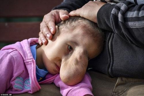 Ngay từ khi chào đời, bé Angel người Philippines đã không may mắc phải bệnh hiểm nghèo mang tênthoát vị não.