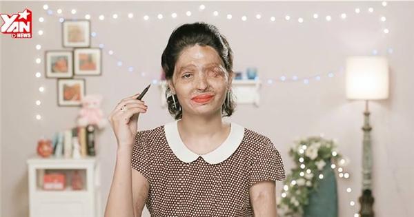 Sốc với clip thông điệp của cô gái Ấn Độ bị tạt axít