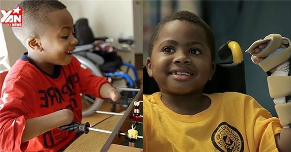 Gặp gỡ em bé đầu tiên được ghép tay trên thế giới