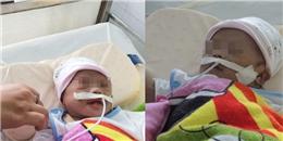 Xót xa hoàn cảnh bé sơ sinh bị mẹ bỏ rơi ở bệnh viện