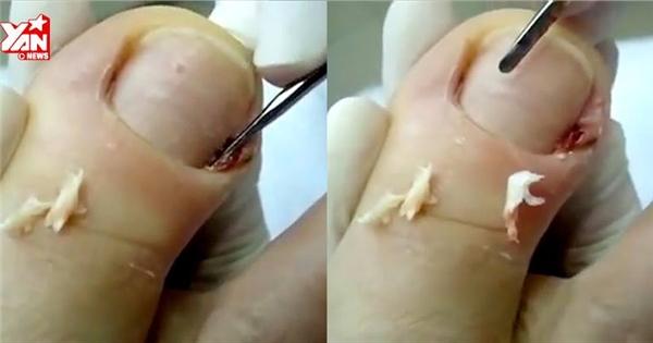 Nổi gai ốc cảnh lấy da chân mưng mủ