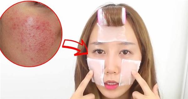 Trị mụn và chăm sóc da hiệu quả như gái Hàn