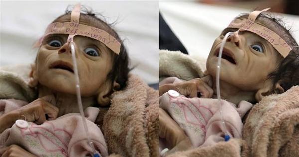 Rơi nước mắt với số phận của những đứa trẻ vùng chiến