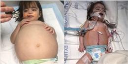 Thương phát khóc cô bé mắc bệnh hiếm bụng to như đang mang thai