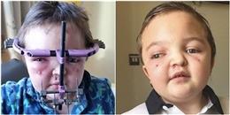 Mới 8 tuổi, cậu bé này đã chịu 30 lần phẫu thuật cùng nỗi đau khó tả